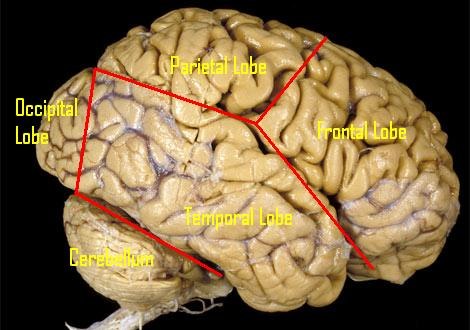 whole brain.jpg