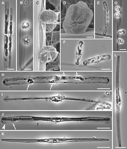 diatom sex3.png