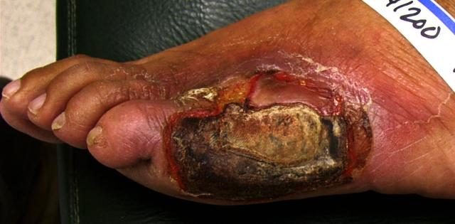 ulcercellulitis1.jpg