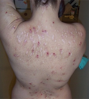Morgellons Images