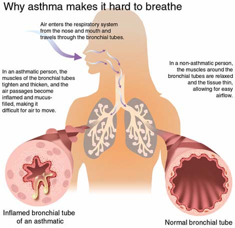 Asthma, placebo, and how not to kill your patients | White Coat ...